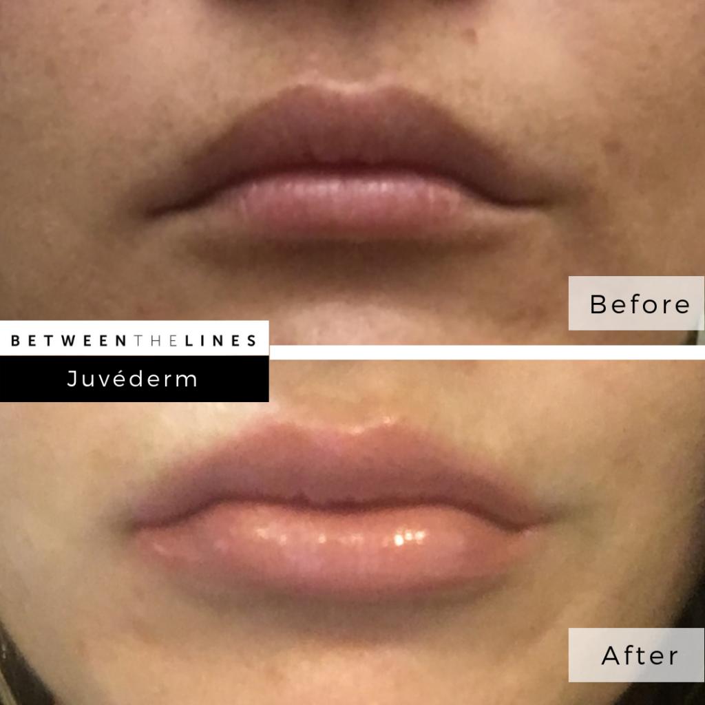 Between The Lines Aesthetic Huntington Beach juvederm botox lip filler
