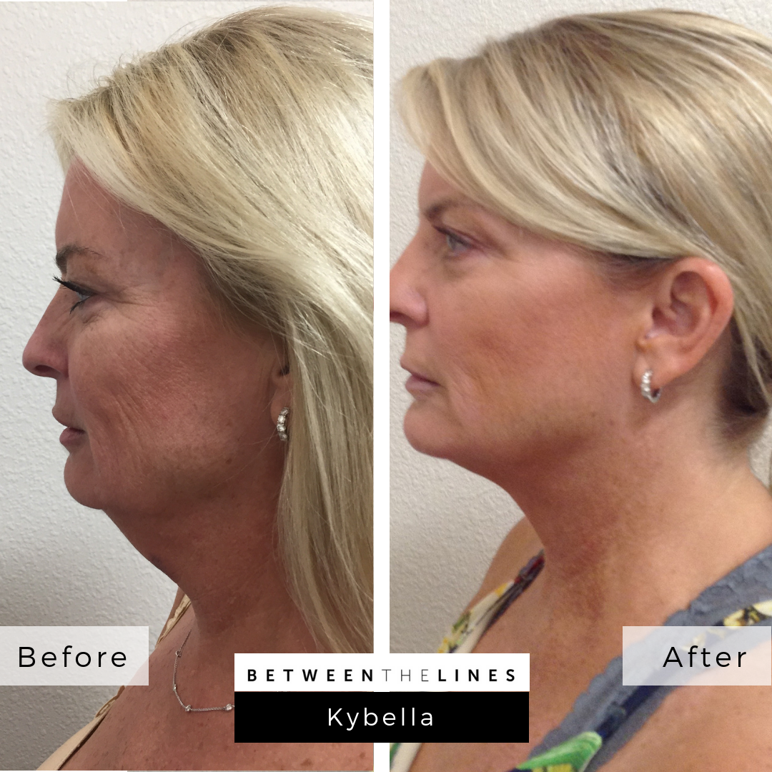 Between The Lines Aesthetic Huntington Beach juvederm botox lip filler kybella
