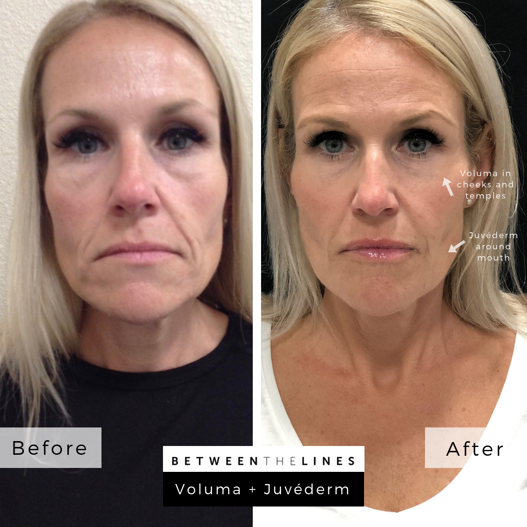 Between The Lines Aesthetic Huntington Beach juvederm botox lip filler